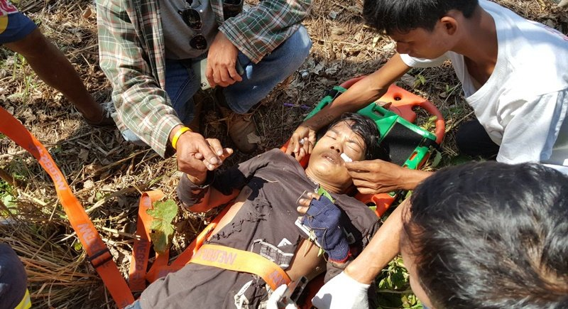 Mr Det, 25, from Myanmar suffered electric shock while working on cables on Wiset Rd in Chalong. Photo: Eakkapop Thongtub
