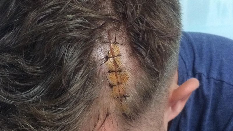 Police are still looking for the four suspects who attacked German tourists Patrick Starke on Sept 27. Photo: Supplied