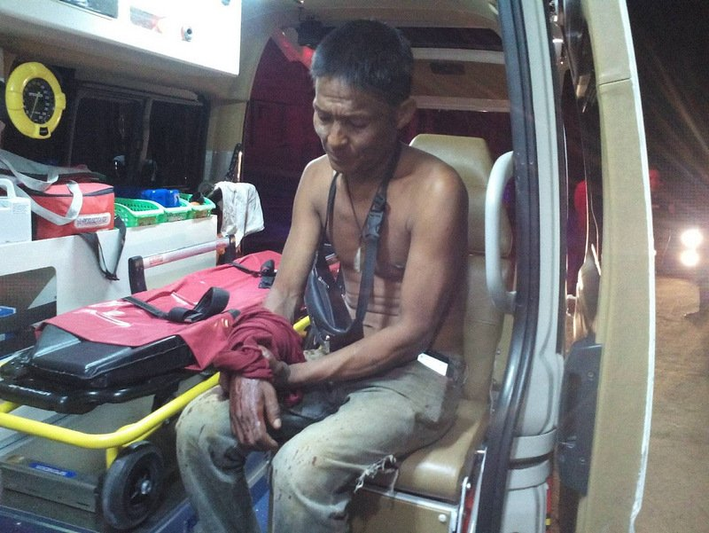 Chan Sui, 43, suffered a cut to his arm. Photo: Eakkapop Thongtub